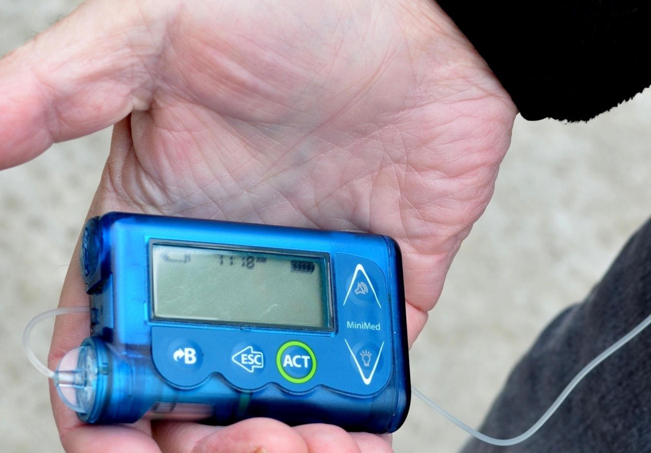 Ordenan retirar los adaptadores de corriente de las bombas de insulina t:Slim X2 por riesgo de lesiones