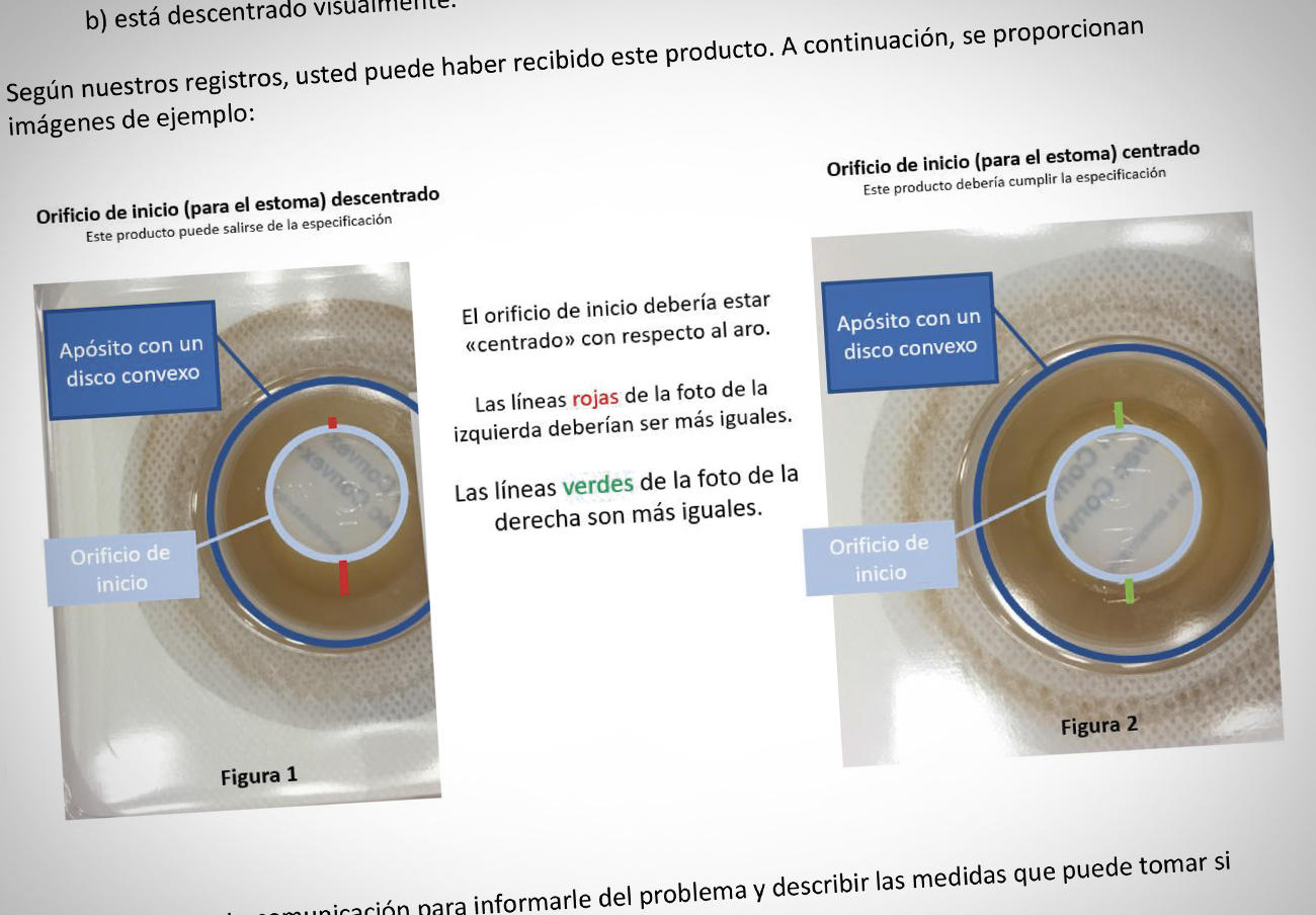Alertan de fallos en el orificio del estoma de apósitos para ostomía Surfit, Combihesive y Durahesive
